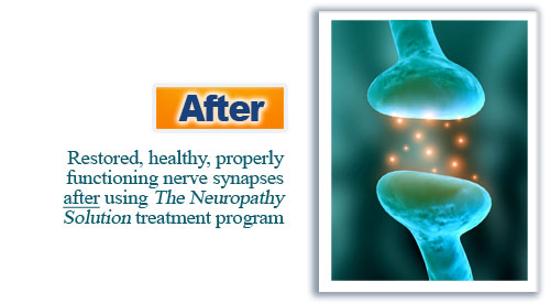 The Neuropathy Solution Program  Image of after synapses
